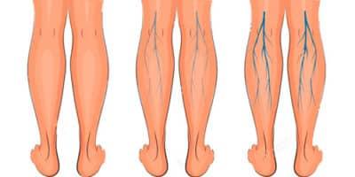 varizes nas pernas